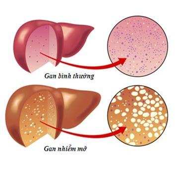 Làm sao để giảm bớt gánh nặng cho gan
