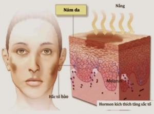 detox da là gì